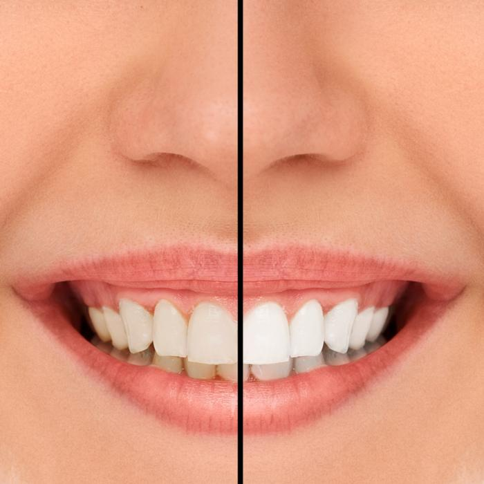 Teeth Whitening | Bayport MN Dentist