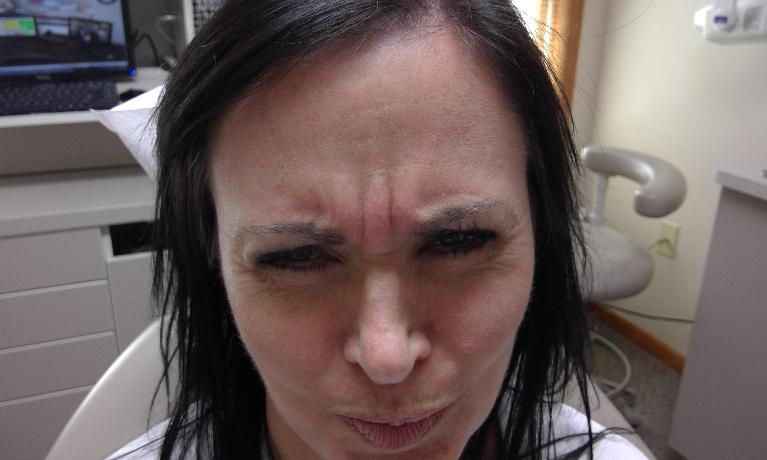 Botox-and-Dermal-Fillers-Before-Image