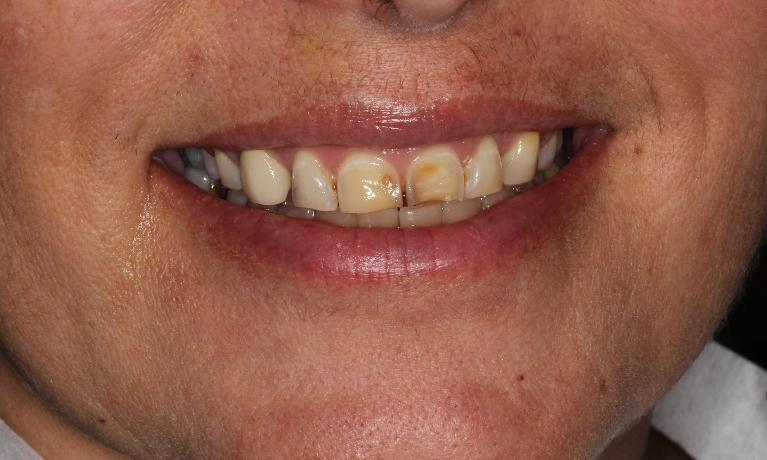 Treatment-of-hereditary-defects-with-Porcelain-Crowns-Before-Image