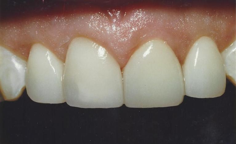 Porcelain-Veneers-positional-and-esthetic-corrections-After-Image