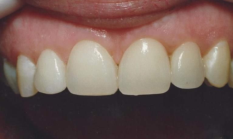 Periodontal-Treatment-with-Porcelain-Veneers-After-Image