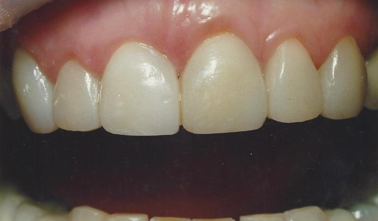Porcelain-Crowns-for-Esthetic-and-Functional-upgrades-After-Image