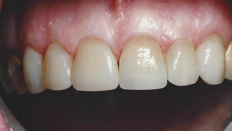 Porcelain-Veneers-closing-spaces-After-Image