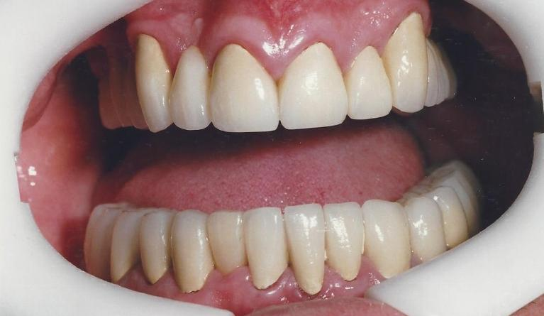 Full-mouth-rehabilitation-Sedation-After-Image