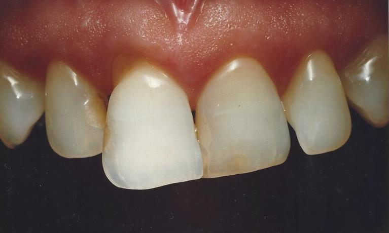 Porcelain-Veneers-positional-and-esthetic-corrections-Before-Image