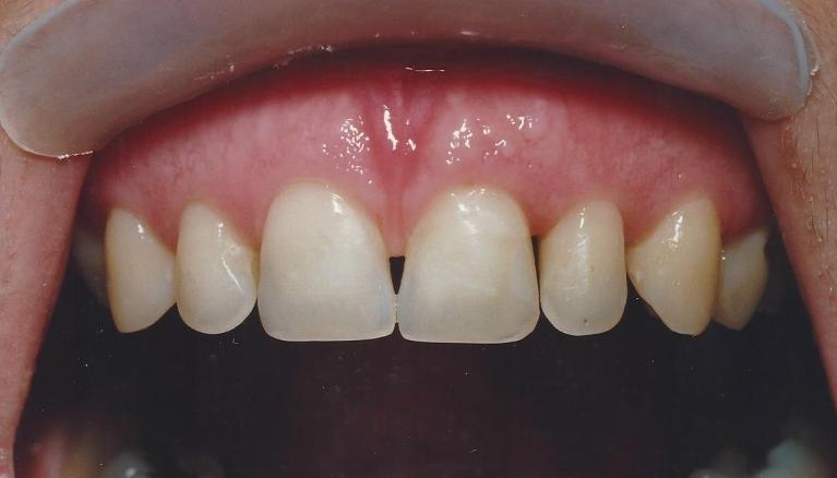 Periodontal-Treatment-with-Porcelain-Veneers-Before-Image