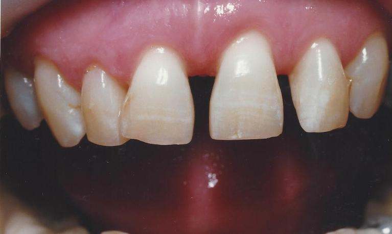Porcelain-Crowns-for-Esthetic-and-Functional-upgrades-Before-Image
