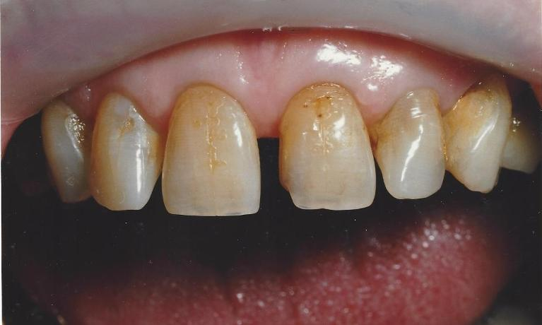 Porcelain-Veneers-closing-spaces-Before-Image