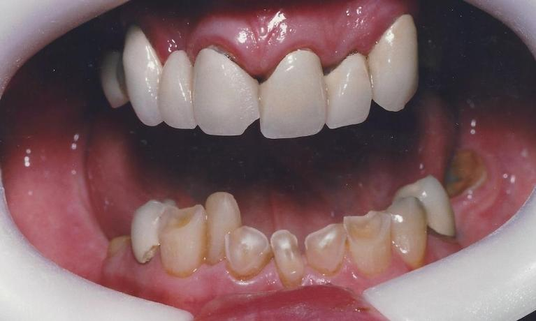 Full-mouth-rehabilitation-Sedation-Before-Image