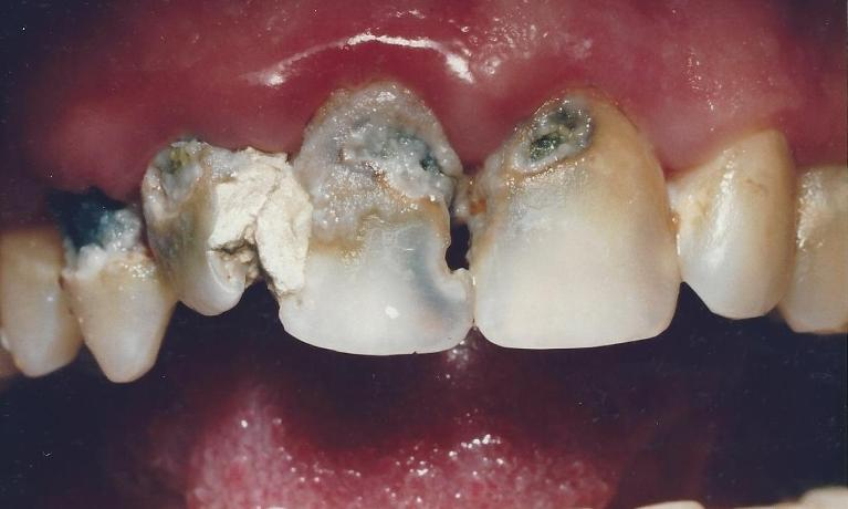 Fillings-and-Crowns-Decay-Treatment-Before-Image